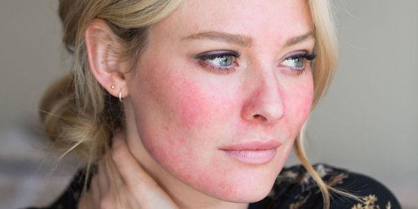 laser peeling acn il est temps de passer l 39 action trucs de nana. Black Bedroom Furniture Sets. Home Design Ideas